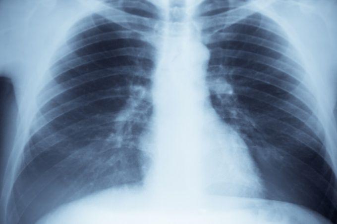 Как делать рентген