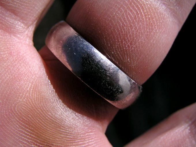 Как снять кольцо с опухшего пальца