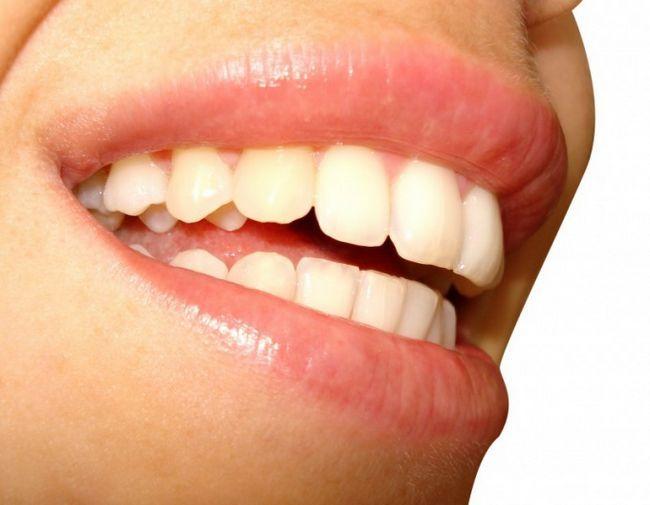 Как выбрать правильно зубную пасту