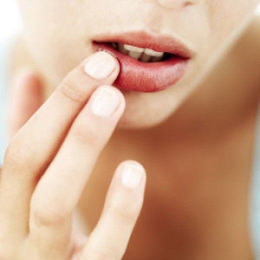 Как убрать простуду на губах