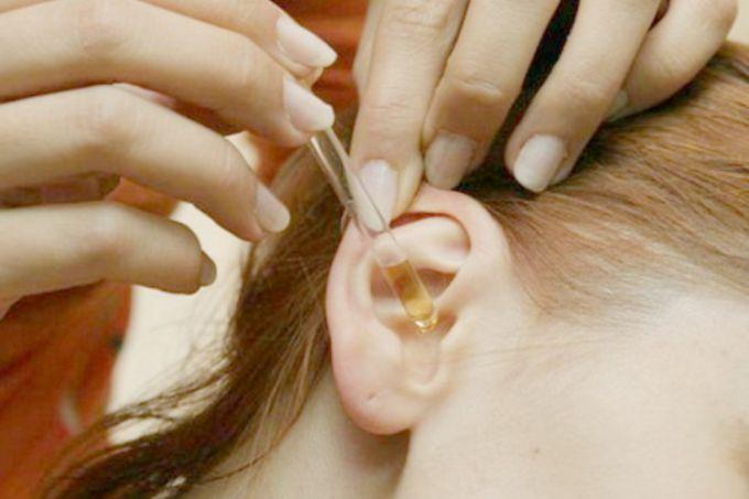 Как удалить в домашних условиях серные пробки из ушей