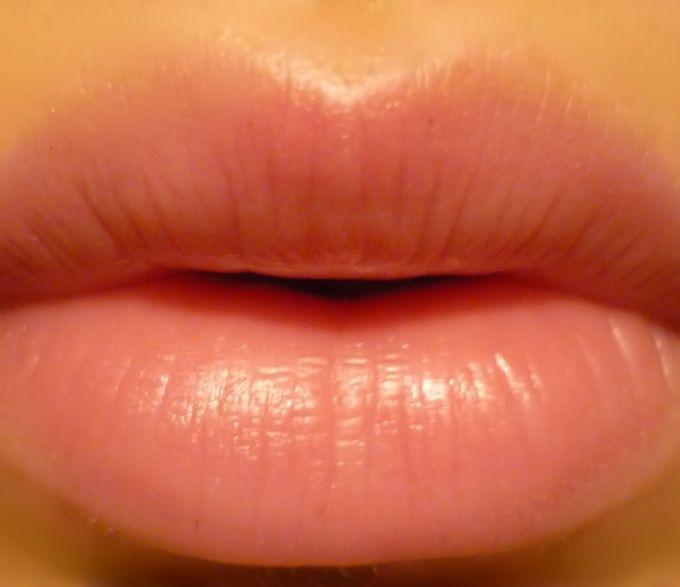 Как вылечить трещину на губе
